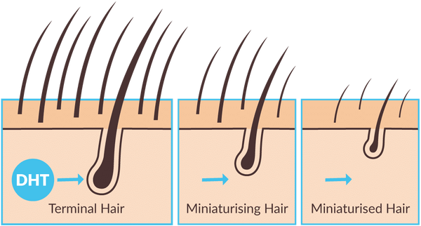 DHT attacks hair follicles graphic