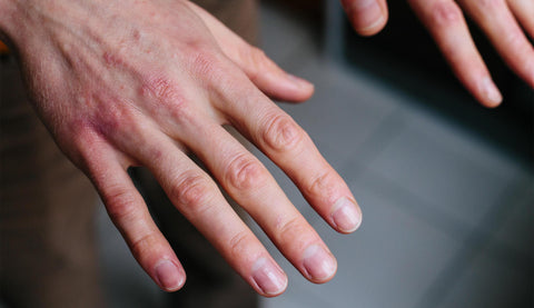 Dry hands from using hand sanitizer too much and hand washing