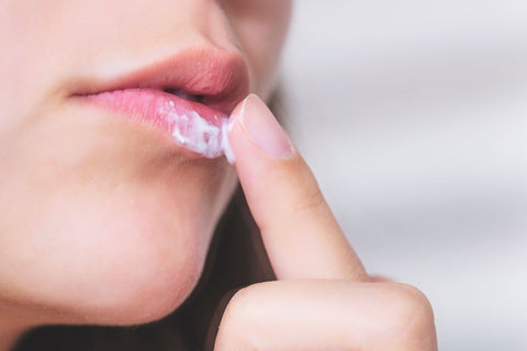 TREATMENT OPTIONS FOR COLD SORES