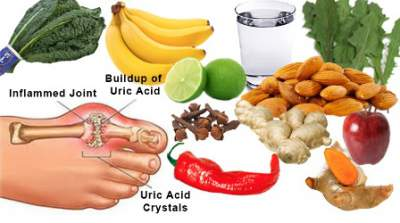 6 Natural Gout Remedies That Work – Dad 4 Life Challenge