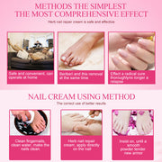 Nail Treatment Cream - Nextelect