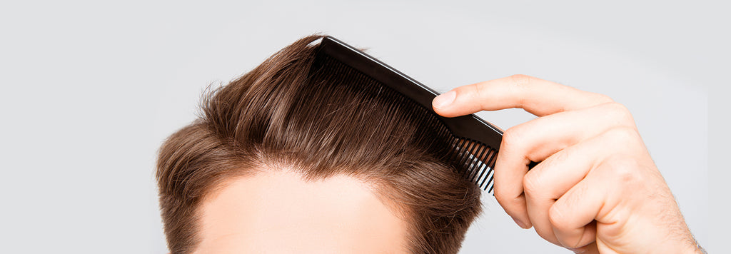Hair Loss Affects Half the Population (& 5 other facts you should know)