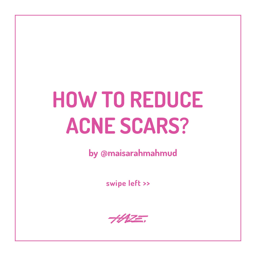 How to reduce acne scars? by iman abdul rahim