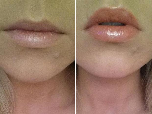 Dreamweave Lip Voltage Lip Plumper - Plumps Lips In Minutes - In Stock - £18 - Free UK Delivery
