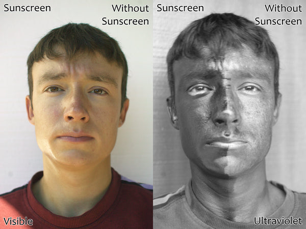 An example of UV-sensitive photography from Wikipedia. Darker skin indicates areas protected from sun.