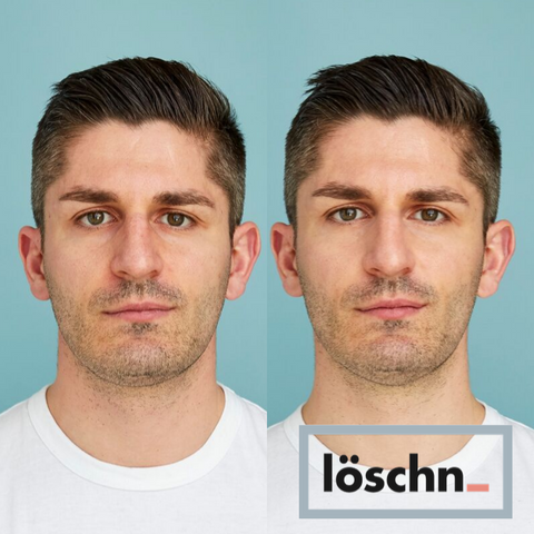 A white man with a beard in a before and after photo comparing the results of his Löschn treatment. The bags under his eyes are softened, his jaw is more defined, and his skin is more toned