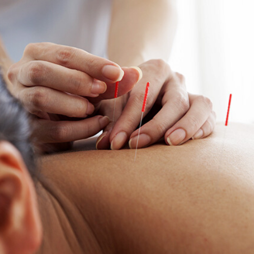 Book Your Acupuncture Appointment in Solihull Today!