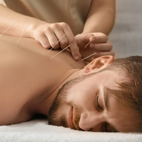 Acupuncture in Solihull Simon Evans Physiotherapy