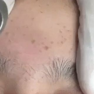 Skin Spots and Tattoo Removal Pen
