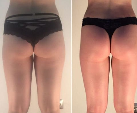 anti-cellulite machine before and after