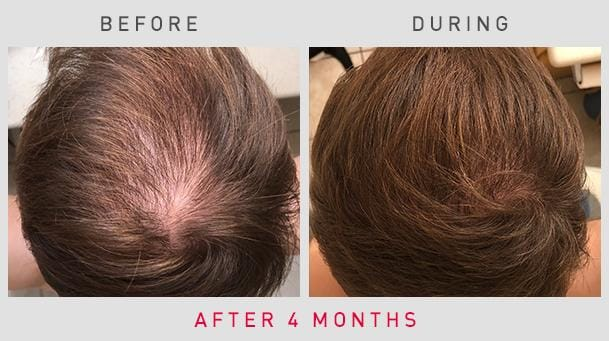 Before/After Image #2