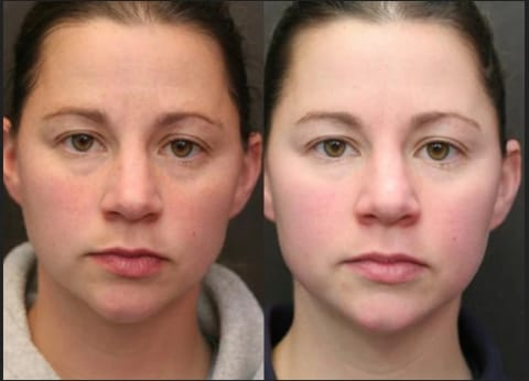 FOREVERFLY before and after LED light therapy mask