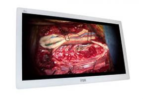 "FSN FS-P3102D 31"" 4K UHD Surgical Monitor - Alternative Source Medical"