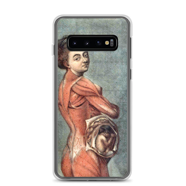 Samsung Case, Vintage Anatomy Art, Pregnant Woman, Mom To Be
