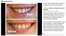 Cool Teeth Whitening Kit Fast Acting Gel for Sensitive Teeth, Led Accelerator Light Included, White, Mint, 1 Count