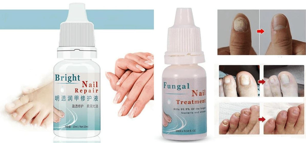 Perfect Nails® Toenail Anti Bacterial and Fungus Treatment Health Fit Lifestyle For You 1 for 14.99
