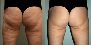 Revolutionary Anti-Cellulite Vacuum Healthier Lifestyle For You