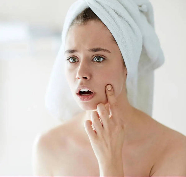 How to Heal and Prevent Those Pesky Breakouts