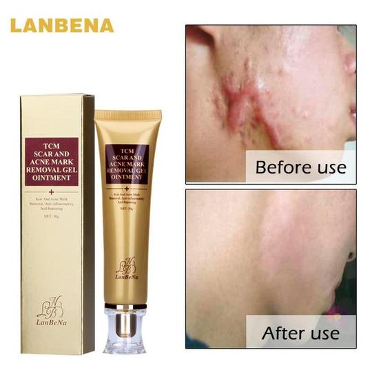 Acne Scar Removal Cream Skin Care Ginseng Extract - Bargainsfan