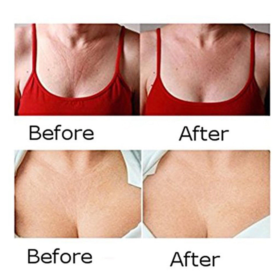 Silicone Anti Wrinkle Chest Pads - Bargainsfan