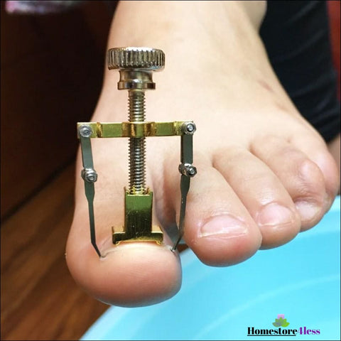 Image of Ingrown Toenail Tool
