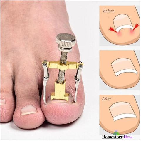 Ingrown Toenail Tool