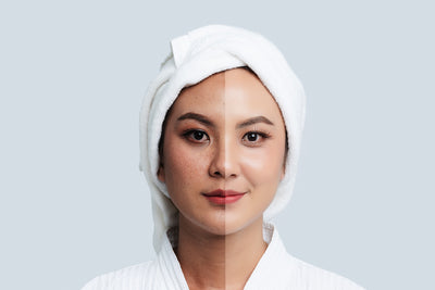 Treating Hyperpigmentation