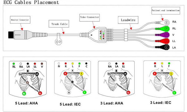 ECG Cable Placement