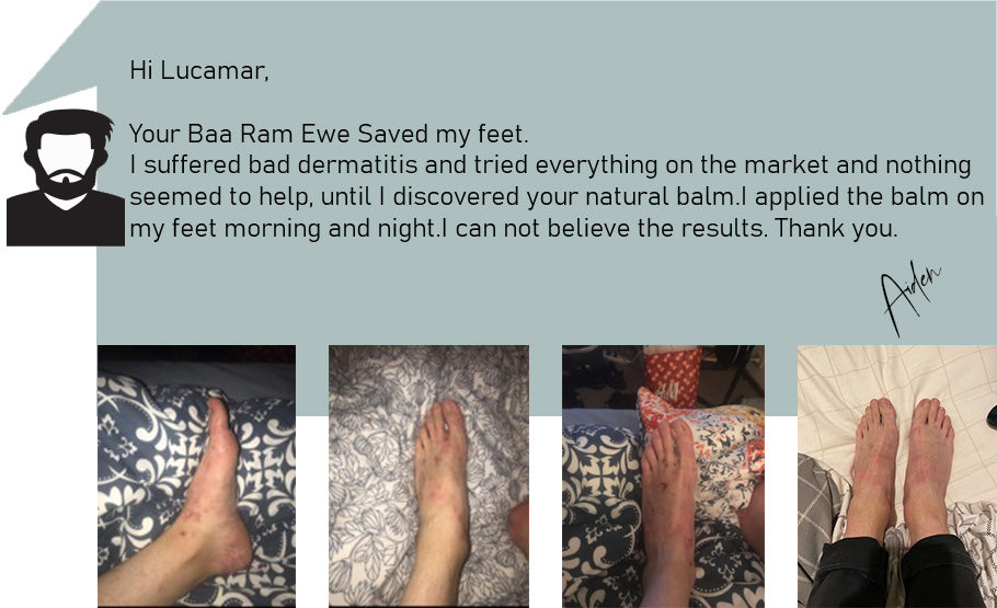 Hi Lucamar,  Your Baa Ram Ewe Saved my feet. I suffered bad dermatitis and tried everything on the market and nothing  seemed to help, until I discovered your natural balm.I applied the balm on  my feet morning and night.I can not believe the results. Thank you.