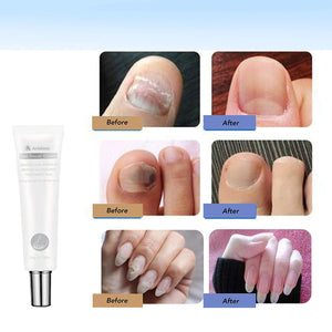 Arishine Toenail Fungus Treatment Cream, Nail Fungus Stop, Fingernail Fungus, Fungi Nail Fungus Remover, Maximum Strength Antifungal Cream