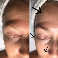 How To Do Connective Tissue Massage Face And Neck
