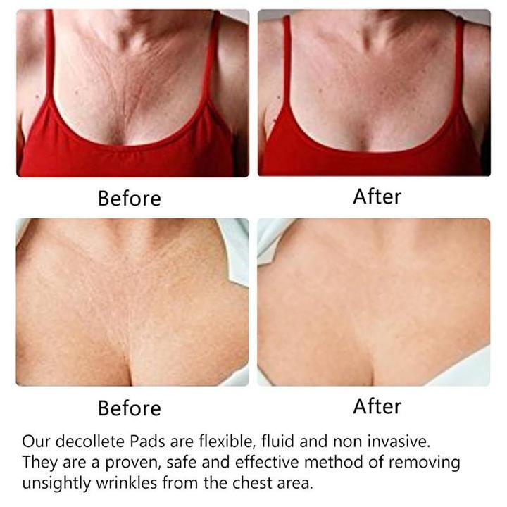 Anti-Wrinkle Chest Pads