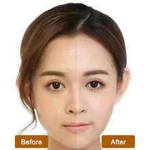Load image into Gallery viewer, Natural Snake Venom Extract Formula Facial Mask For Acne & Winkle Removal - Facial Mask