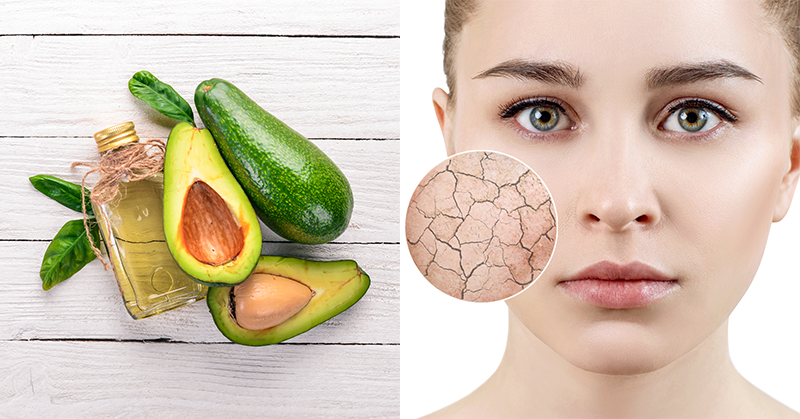 Got Dry Skin? Here's Why You NEED Avocado Oil!