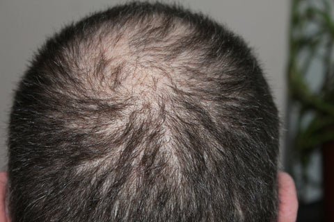 C60 Olive Oil Hair Loss