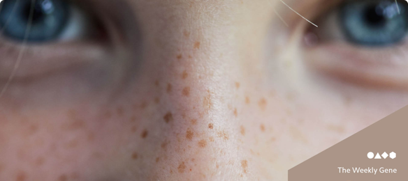 The genetics of a freckle