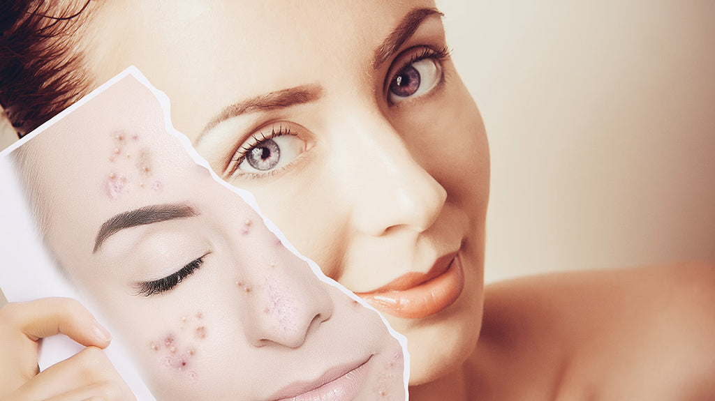Here's How To Get Rid of Pigmentation Once & For All