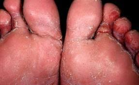 Athlete's Feet (tinea pedis)