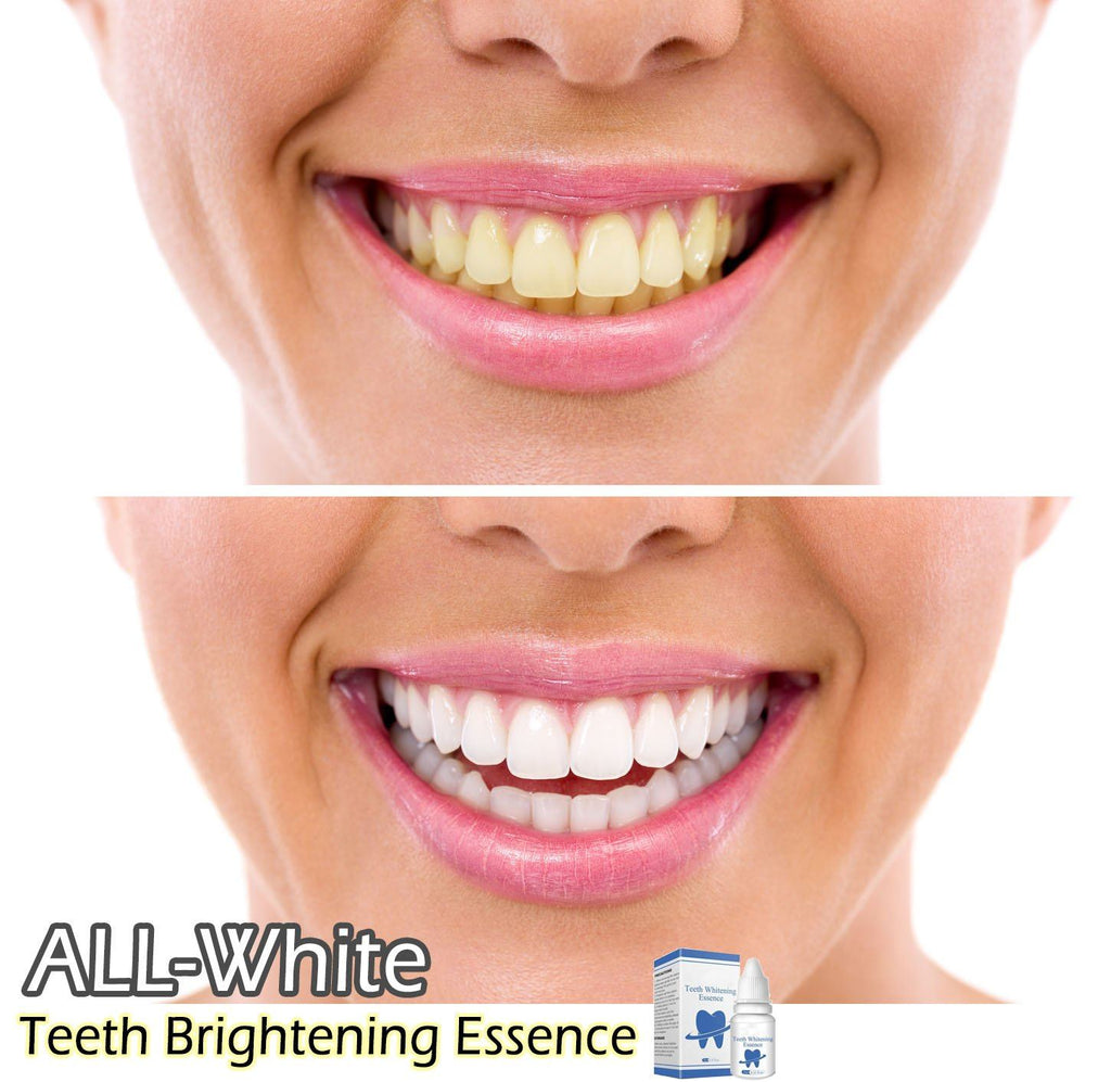 ALL-White Teeth Brightening Essence