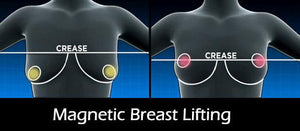 Instant Magnetic Therapy Breast Lifts