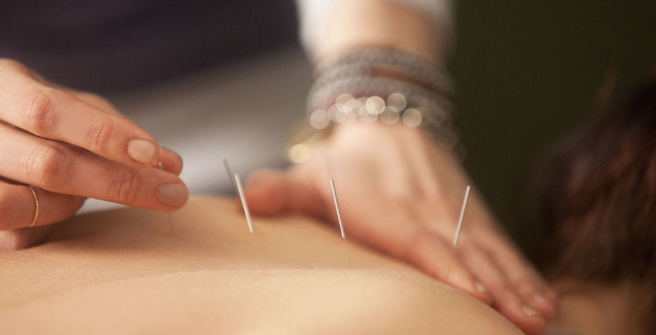 5 Surprising Facts About Acupuncture