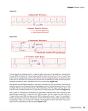 Osmosis Electrocardiography Essentials
