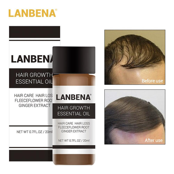 LANBENA Powerful Hair Growth Essence & Treatment For Preventing Hair Loss