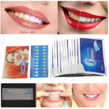3D Teeth Whitening Strips 28Pcs/14Pair - Qualandise