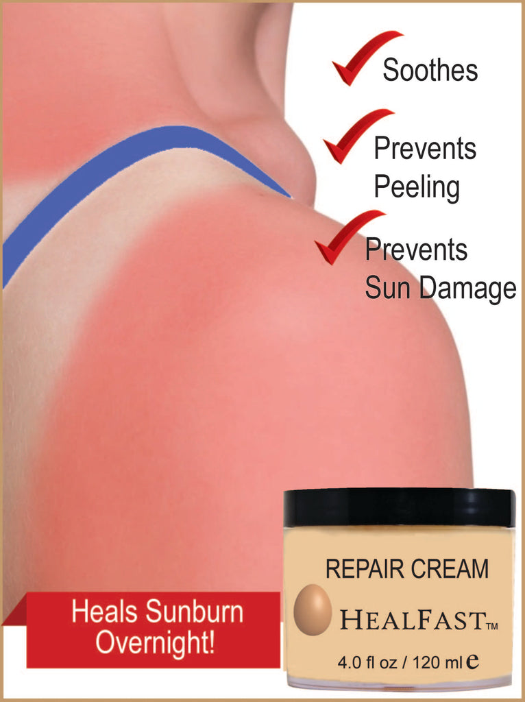 How To Heal Sunburn Fast Without Peeling