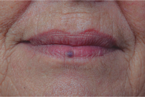 Venous Lake Treatment – For Blue Spot on Lip
