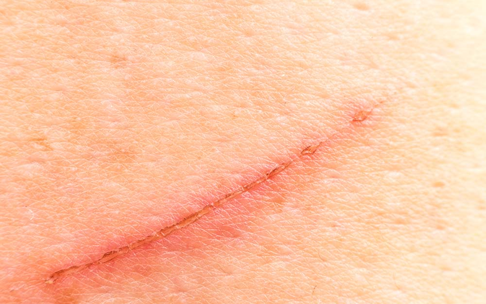 How to Prevent a Scar After an Injury
