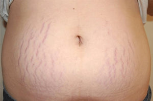 How To Prevent Stretch Marks During Pregnancy or Weight Gain