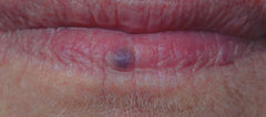 Venous lake on lip blue spot on lip