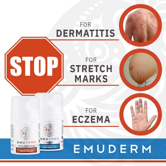 emuderm emu oil infographic about dermatitis, stretch marks and eczema